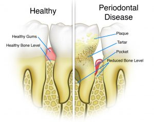 The Difference Between Healthy Gums and Teeth and Those Affected with Periodontal Disease