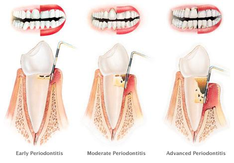 Periodontal Patients Probing Depths
