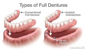 Different Types of Full Dentures