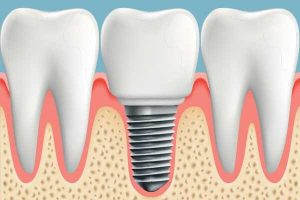 How Air Flow Therapy Can Save Your Dental Implants