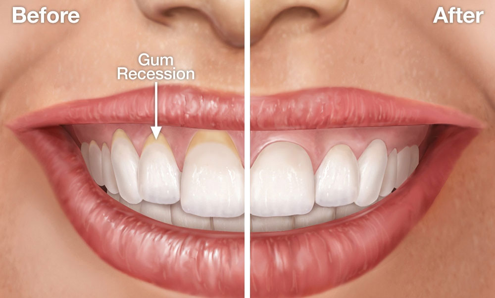 Before After Gum Recession
