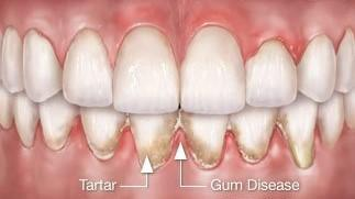 Tartar and Gum Disease